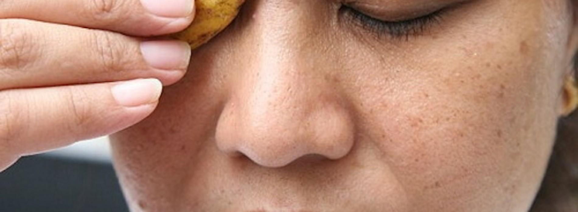 Je gooit nooit meer een bananenschil weg. Als je ziet wat het voor je huid kan doen!