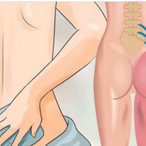8 Remedies voor heupjicht die je eerst moet proberen voordat je weer een pijnstiller in je mond stopt!