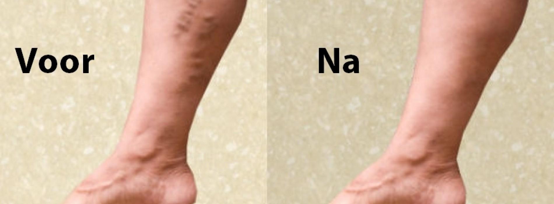 spataders verwijderen met zalf