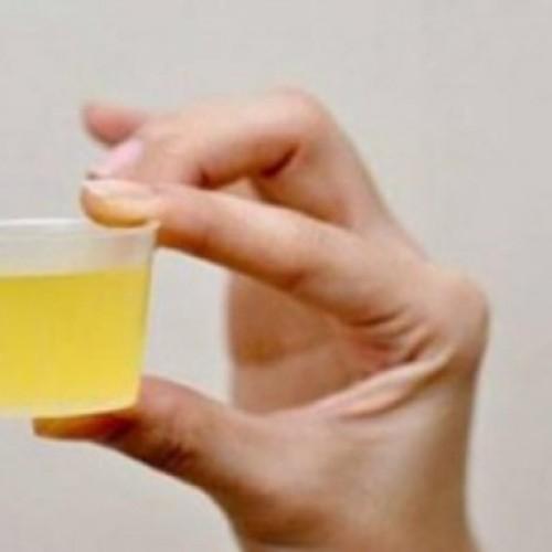 Het drinken van citroenwater in de ochtend is goed voor je, maar DIT is wat ze je niet vertellen!