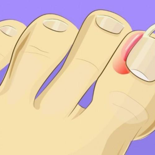 Appelazijn gebruikt kon worden tegen ingegroeide nagels.