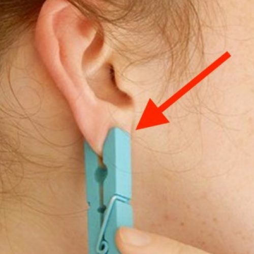 Ze zette een wasknijper op haar oor. De reden waarom? Dit is waanzinnig!