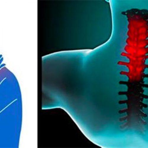 Ik ben zo blij dat ik dit geleerd heb! Deze truc zal u helpen als u last heeft van een stijve nek!