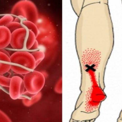 8 makkelijk-te-missen tekenen die je kunnen waarschuwen voor een bloedprop/trombose