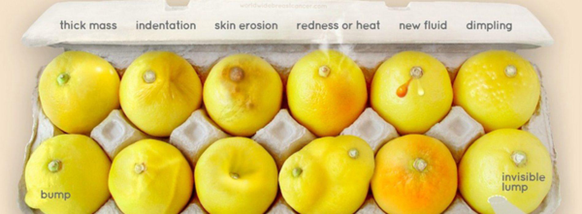 Herken je deze tekenen van borst kanker? Deze foto van citroenen kan levens redden!