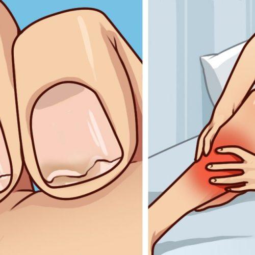Heb je broze nagels? Vaak last van beenkrampen? Dit is wat je moet weten!