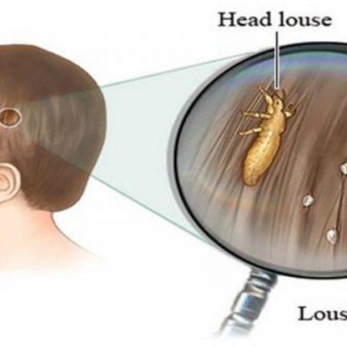 Dit zullen artsen je niet vertellen: een goedkope en simpele manier om van hoofdluis af te komen!