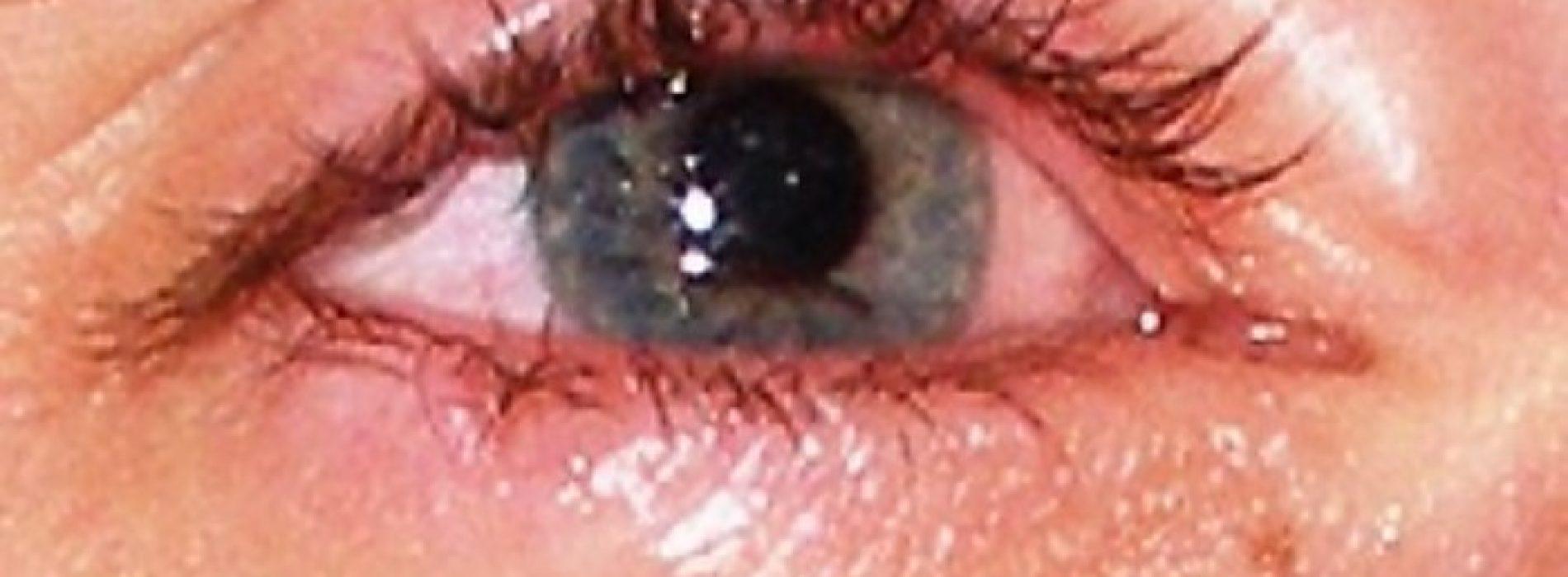 Droge ogen – Oorzaken en oplossingen