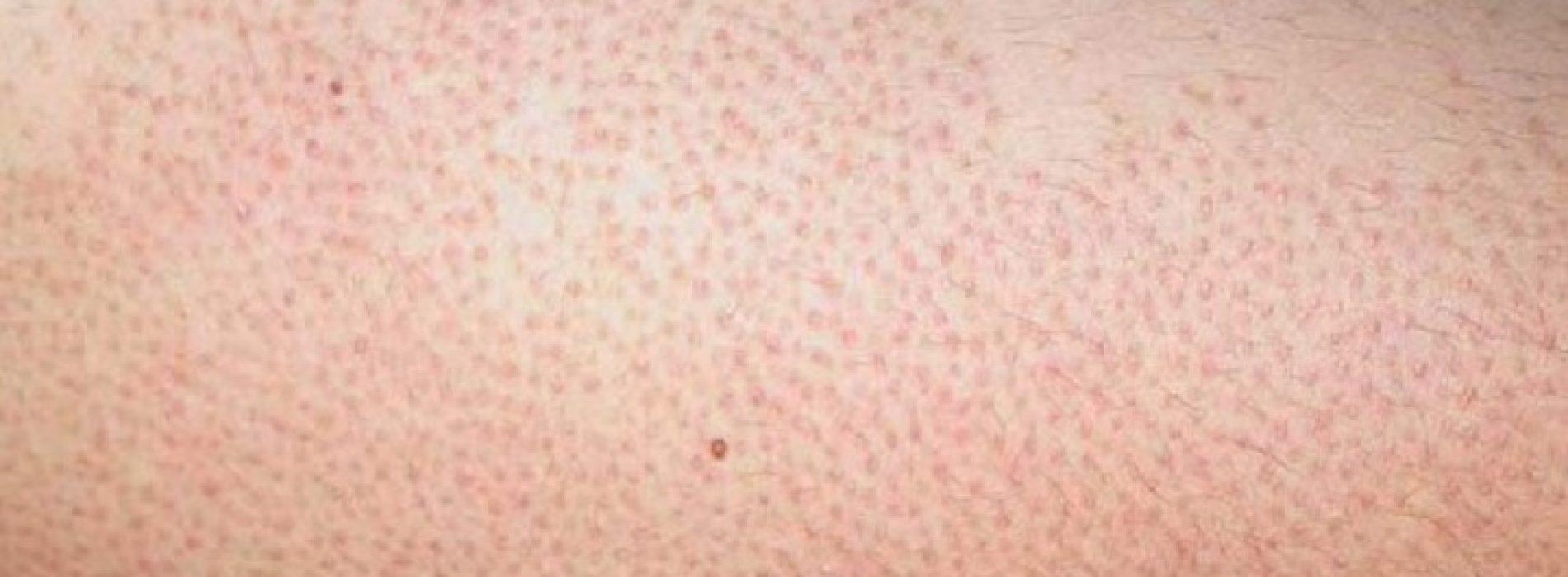 Met DEZE zelfgemaakte peeling kom je snel van die vervelende rode bultjes op je arm af!