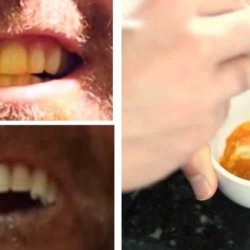 Deze man leert ons een belachelijk eenvoudige truc voor een stralend WIT gebit. Wat is het geheime ingrediënt?