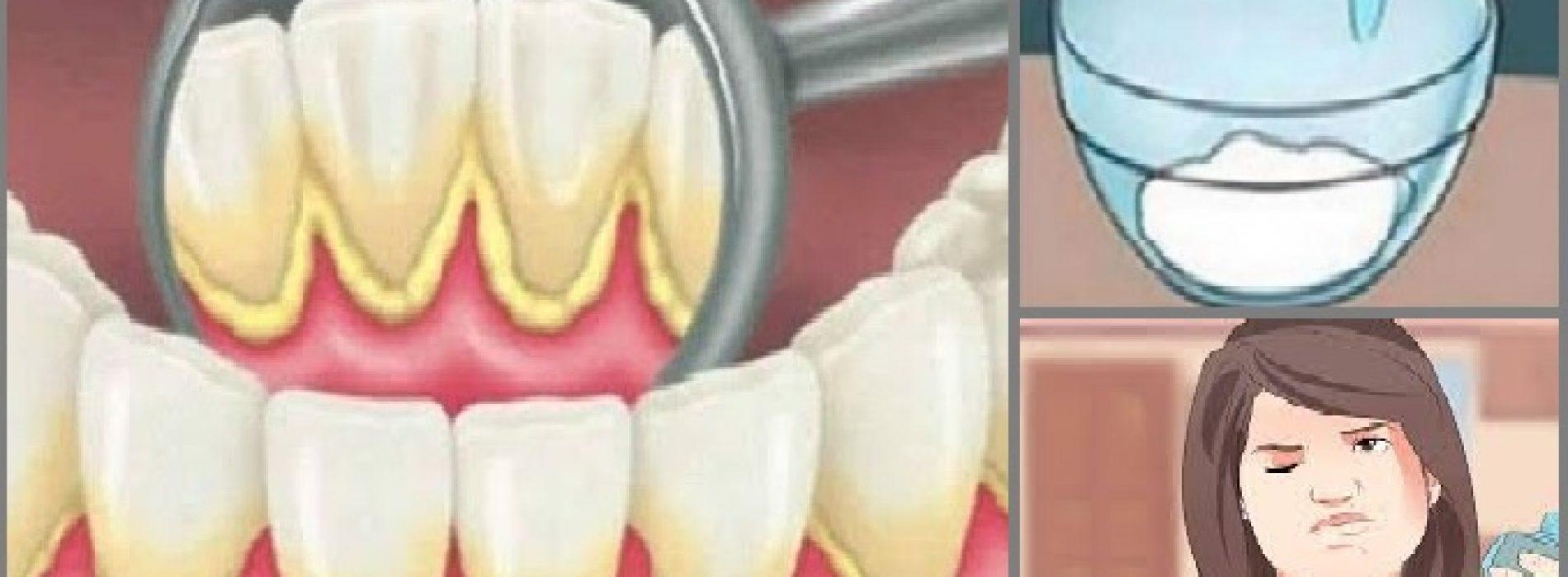 Dit mondwater verwijdert tandplak van je tanden in 2 minuten!