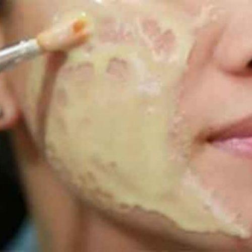 Wrijf dit op ieder litteken, rimpel, of vlek op uw huid en geniet van ze te laten verdwijnen in enkele minuten!