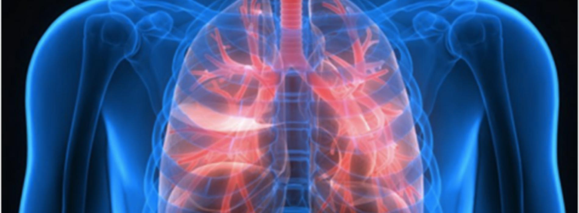 Iedereen zou deze subtiele symptomen moeten kennen van longkanker!