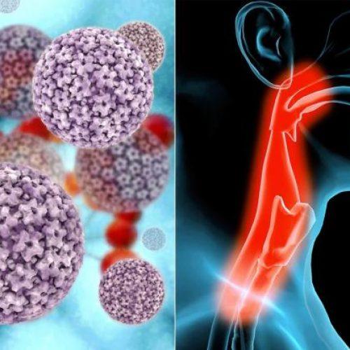 8 Verborgen tekens van keelkanker die niet gemakkelijk te herkennen zijn