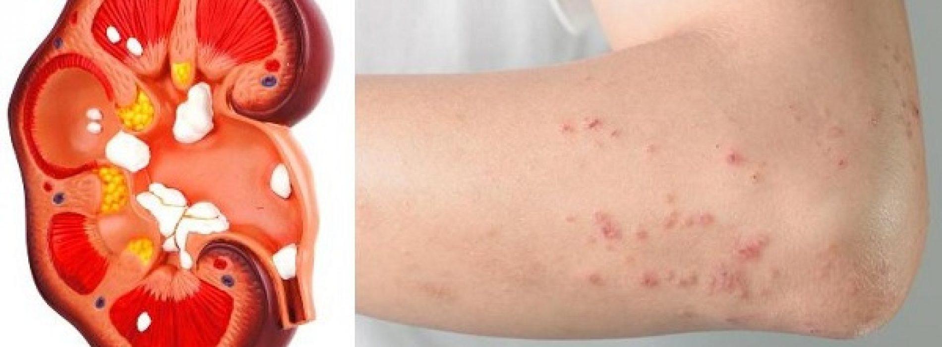 Als de nieren in gevaar zijn, zal het lichaam deze signalen afgeven!
