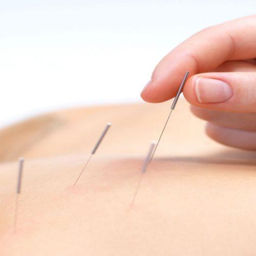 Heeft u voordat u naar pijnmedicatie grijpt al eens nagedacht over acupunctuur?