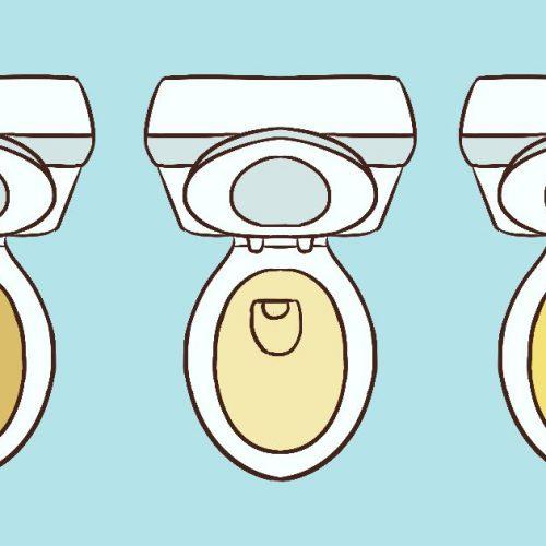 Wat de kleur van je urine zegt over je gezondheid