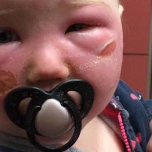 Een moeder's waarschuwing over Aerosol Zonnebrandcrème moet worden gelezen door elke ouder