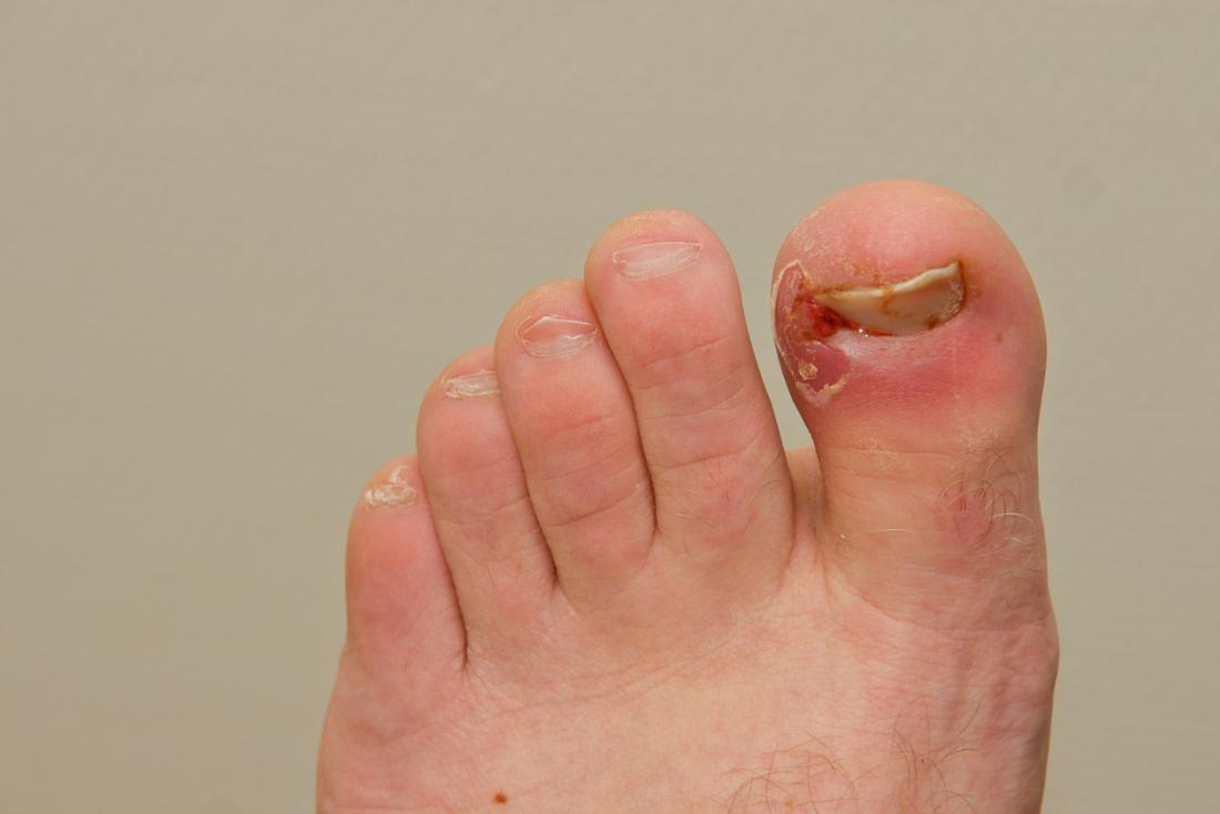 Ingrown toenail: Treatment, causes, and symptoms