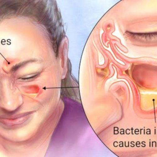 Sinusinfecties in slechts 2 minuten doden met waterstofperoxide en zeezout