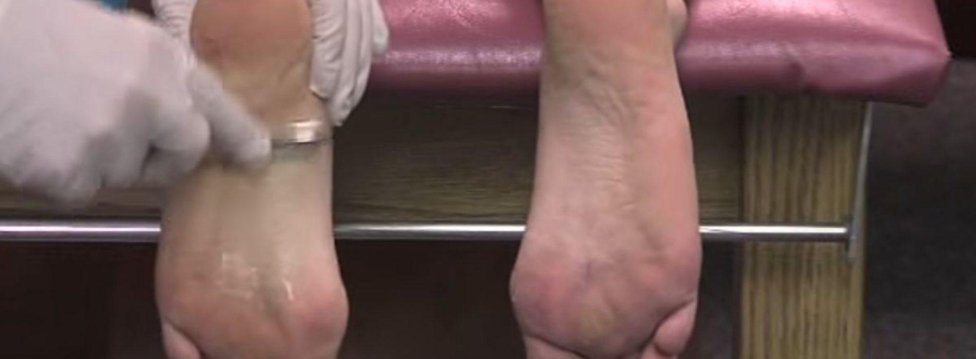 Krijg hulp voor voet- en hielpijn met de behulpzame techniek van deze arts
