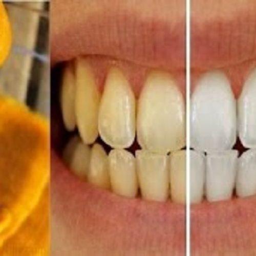 Deze zelfgemaakte tandpasta draait tandvleesaandoeningen terug en maakt tanden witter!