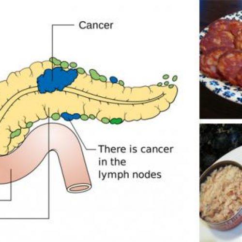 11 Kanker veroorzakende voedingsmiddelen die u nooit meer in uw mond zou moeten stoppen