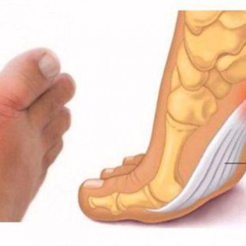 Controleer je voeten en kijk wat ze je vertellen over je bloeddruk, schildklier- en artritis risico