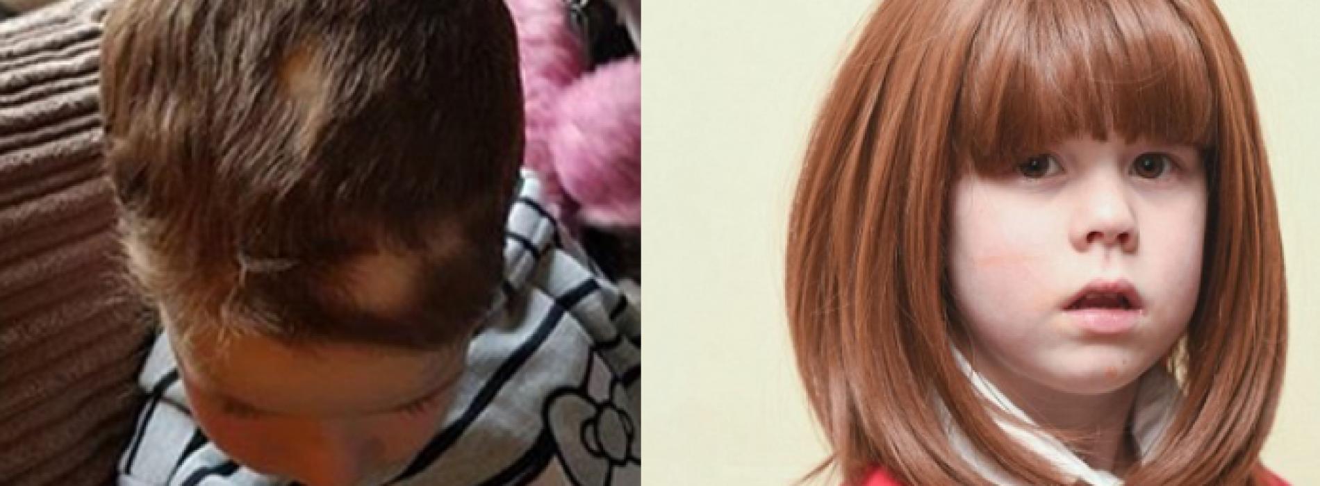 Moeder woedend nadat leraren haar dochter met Alopecia dwingen om de pruik in de klas te verwijderen