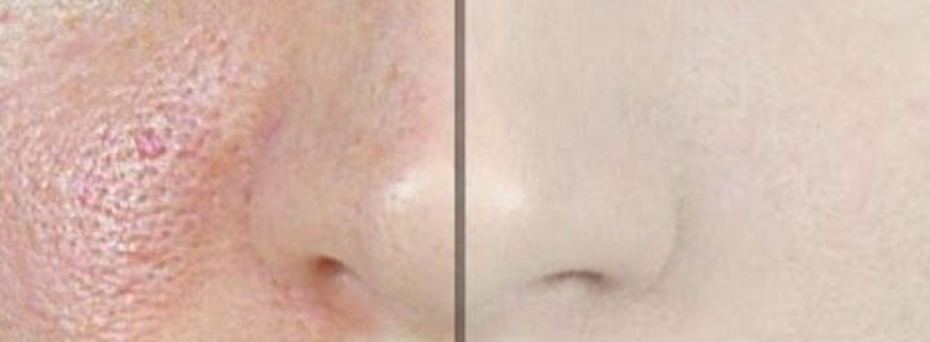 Mensen met vettige huid opgelet! Zo laat je je poriën krimpen met 1 ingrediënt!
