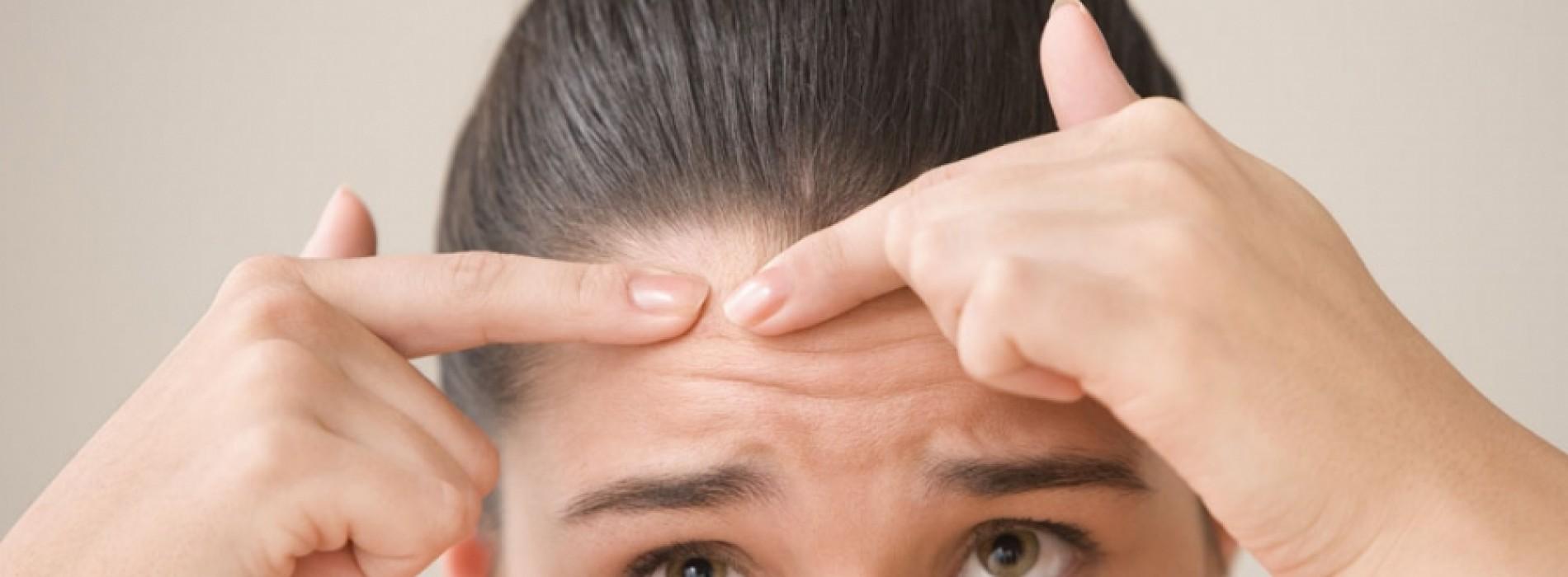 Last van een onrustige huid? Deze producten zijn de boosdoeners!