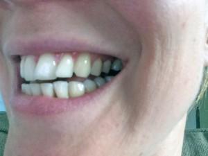 Mijn tanden voor de test…