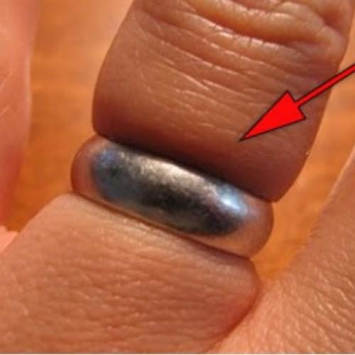 Zo krijg je een ring af als je vingers zijn opgezwollen!