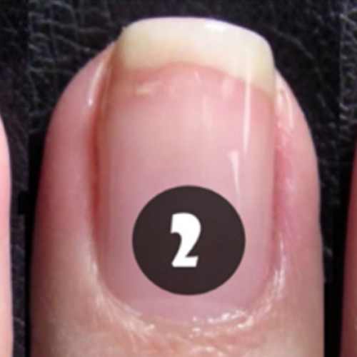 Nagel gescheurd? Geen probleem! Met dit gekke trucje heb je je nagel zó gerepareerd!