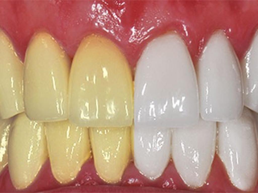 Ongekend 9 Tips om je tanden op een natuurlijk manier witter te maken KV-54