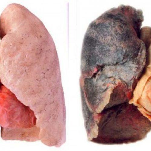De beste natuurlijke manier om je longen van nicotine en teer te reinigen