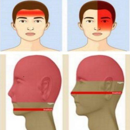 Deze 4 verschillende vormen van hoofdpijn vertellen jou iets over je gezondheid