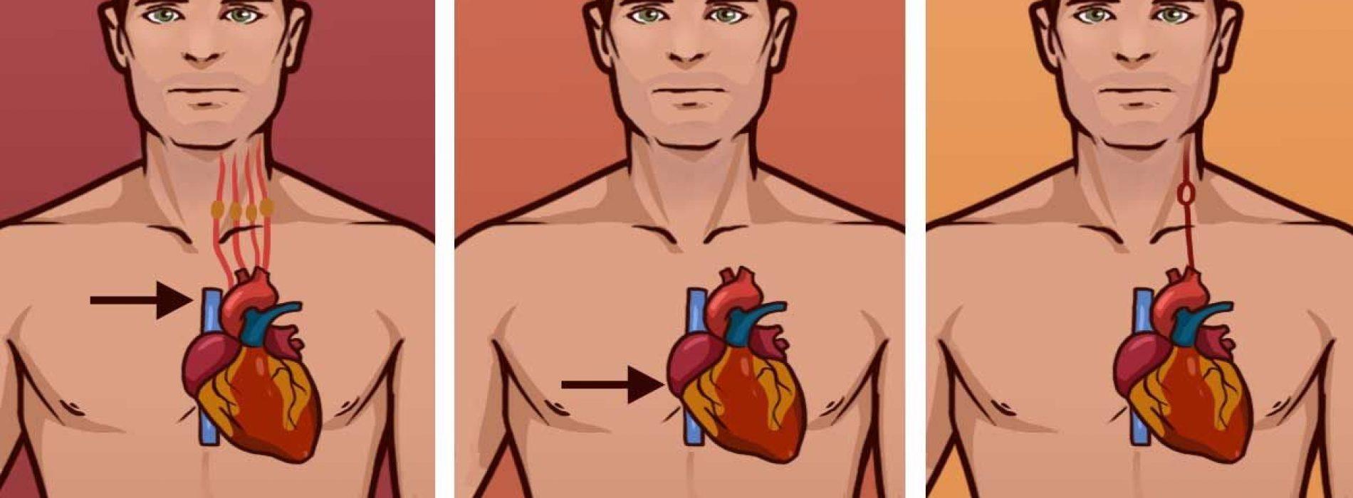 Ken het verschil tussen een hartaanval, een hartstilstand en een beroerte. Het kan een leven redden