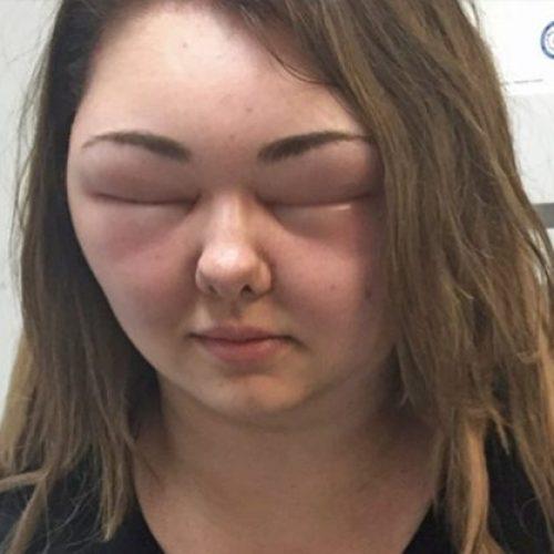 Het gezicht van de vrouw zwelt drie keer op na het gebruik van organische haarverf