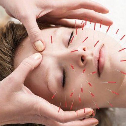 Acupunctuur kan de standaardbehandelingen voor chronische hoofdpijn verbeteren