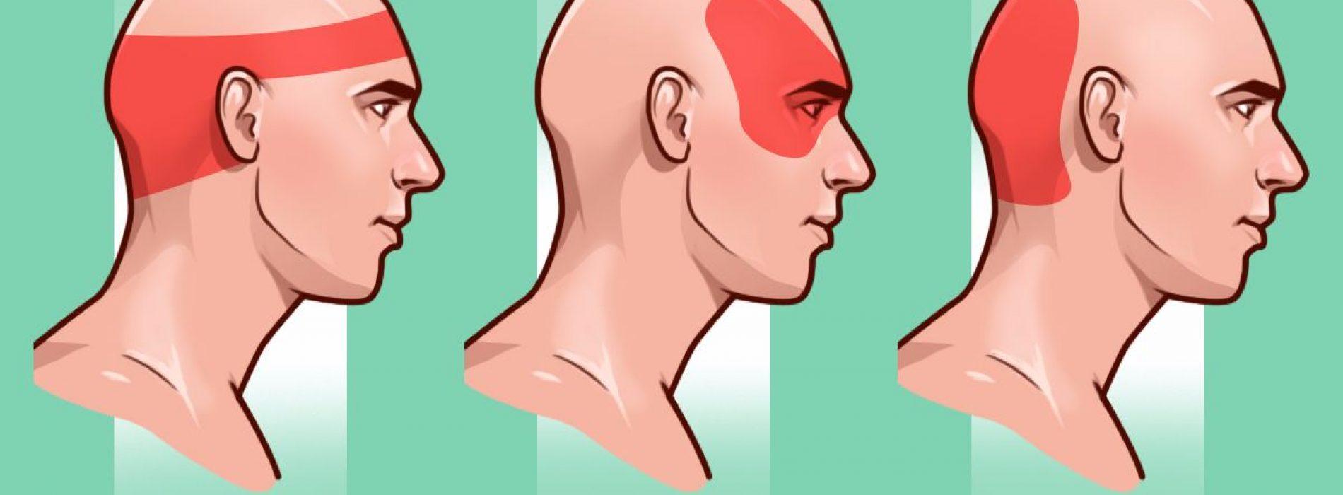 Stop hoofdpijn zonder pillen