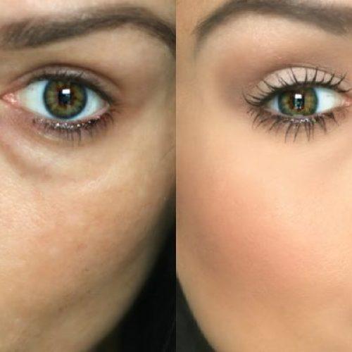 Natuurlijke manieren om donkere kringen onder je ogen te verwijderen